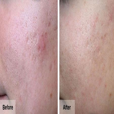 Derma Roller Before After
